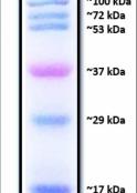 Marcador de Peso Molecular de Proteínas Pré Corado